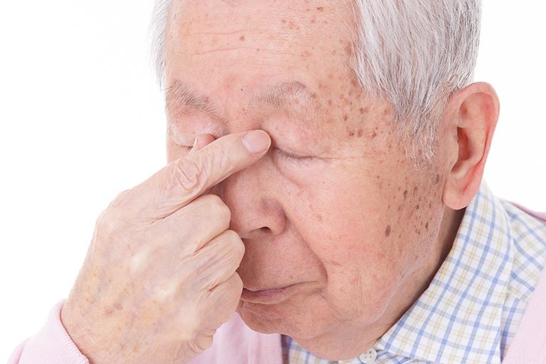 加齢黄斑変性