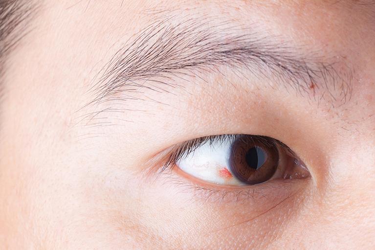 アレルギー性結膜炎(花粉症)